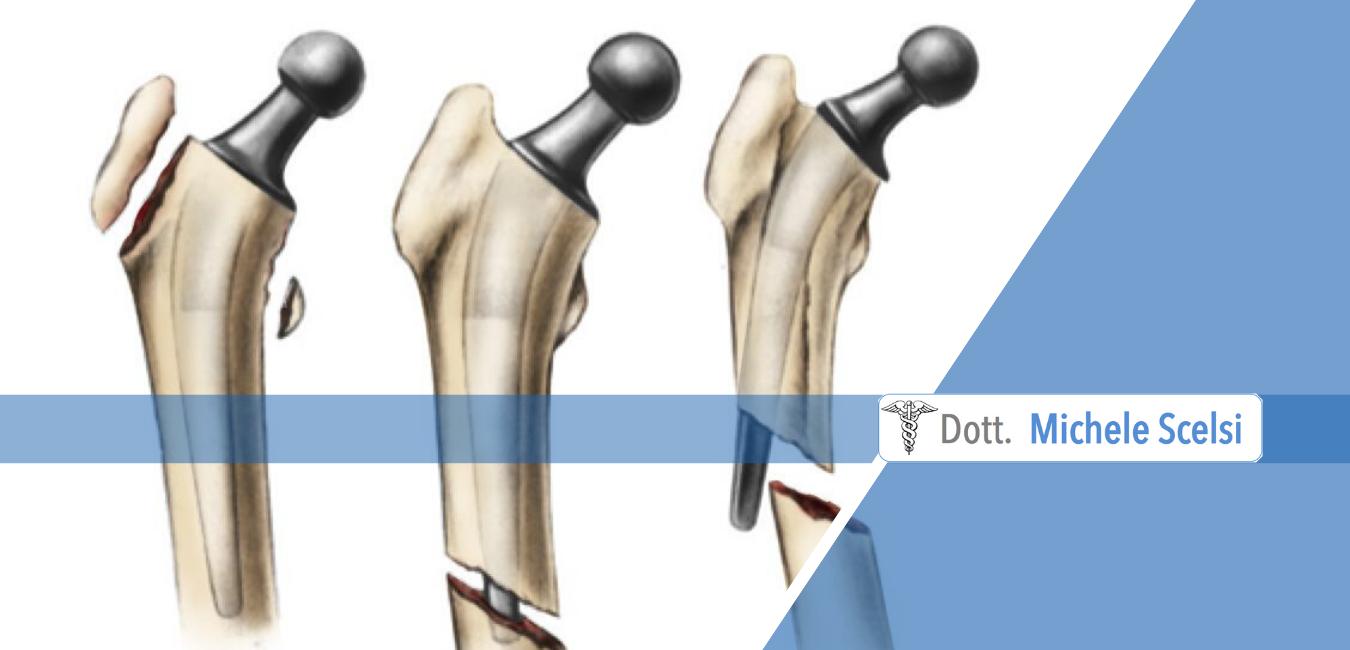 frattura protesi anca