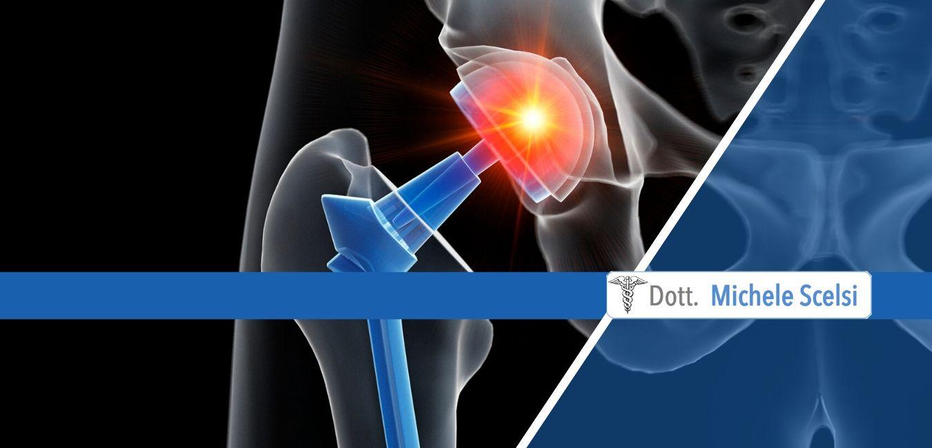 la chirurgia di sostituzione dell'anca ha alcune potenziali complicazioni che, sebbene siano rare, possono verificarsi. Tra queste c'è la lussazione della protesi dell'anca.